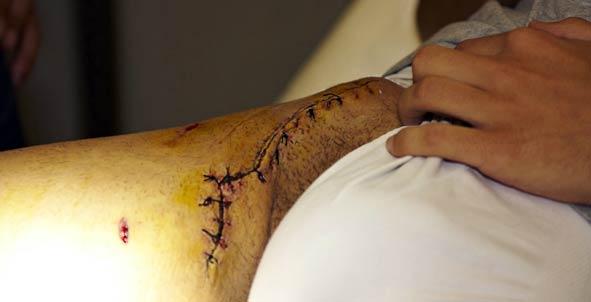 La amplia cicatriz recorre desde la ingle derecha hasta el hueso de la cadera. (FOTO: Eduardo López)