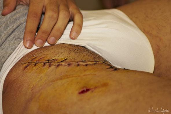 Los médicos han encontrado la herida en buenas condiciones.