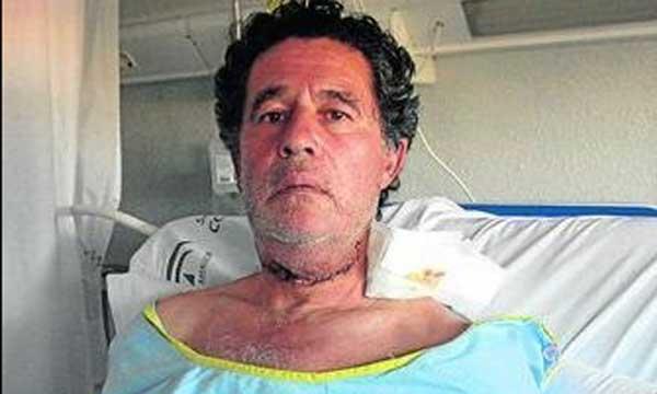 La impactante imagen de José Antonio Campuzano en el hospital, con el cuello seccionado de lado a lado y la mandíbula superior muy hinchada. (FOTO: Diario de Sevilla)